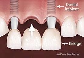 implant3